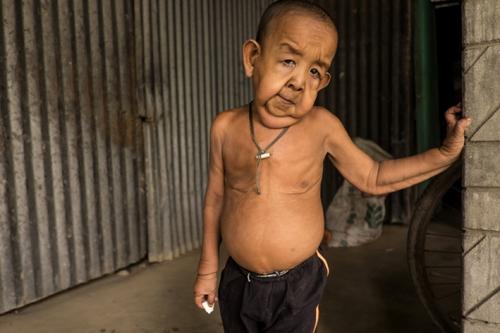 Idap Penyakit Aneh, Balita 4 Tahun Ini Tampak Seperti Kakek Berusia 80 Tahun