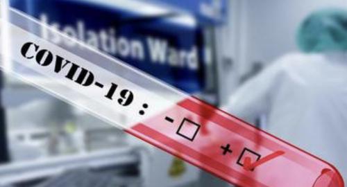 Selama Pandemi Covid-19, 861 Warga Riau Reaktif Saat Dirapid Test