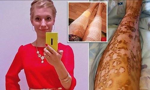 Gunakan Laser Wax Agar Mulus, Kulit Wanita Cantik Ini Malah Jadi Mengerikan