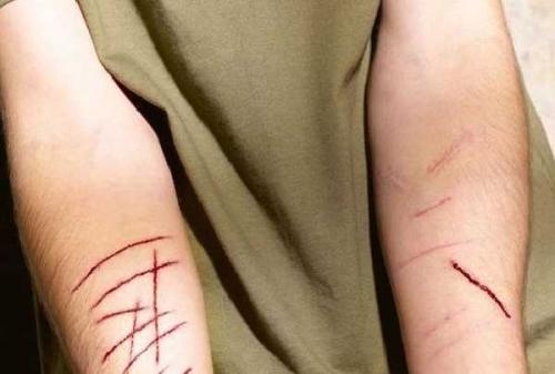 Miris Puluhan Remaja Putri Di Pekanbaru Dan Surabaya Nekat Sayat Tangan Ini Kata Kak Seto Gosumut Com