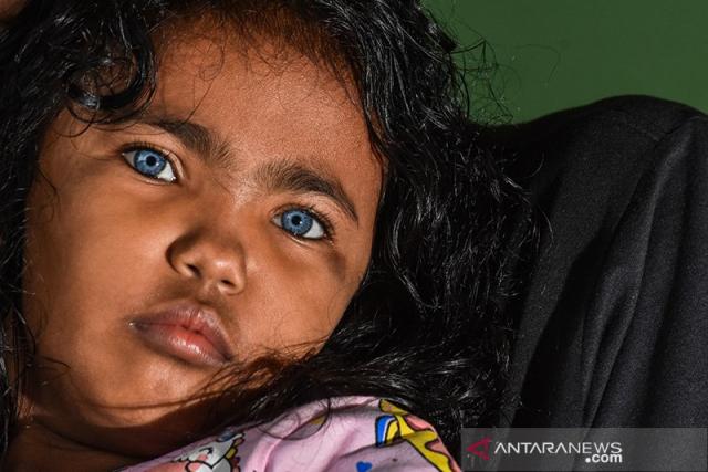 Ini Kisah di Balik Fenomena Anak Bermata Biru di Pekanbaru