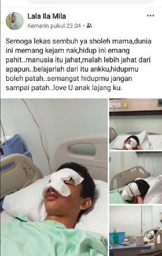 Viral.., Seorang Anak SMP Dibully dan Dipukuli di Pekanbaru Hingga Patah Hidung, Guru Dalam Kelas Malah Asik Main Hape