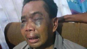 Diamankan Polisi Sebagai Saksi, Kuli Bangunan Babak Belur Dipukul, Diinjak dan Disetrum