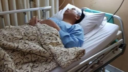 Skenario Kecelakaan Novanto Terbongkar, Begini Ceritanya Menurut KPK