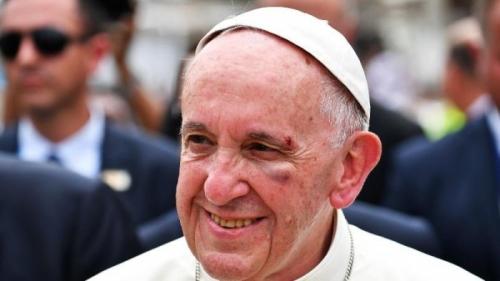 Alami Insiden, Wajah Paus Fransiskus Luka dan Berdarah