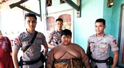 13 Dokter Dikerahkan Tangani Arya, Bocah Berbobot 190 Kilogram