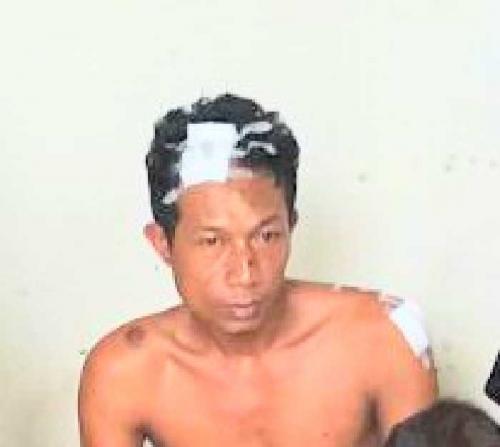 Ini Foto Buronan Polisi yang Lolos dari RS Bhayangkara Polda Riau, Bagi yang Melihat Segera Laporkan