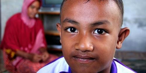 Kelainan Hormon, Bocah Usia 5 Tahun di Aceh Barat Sudah Berkumis dan Brewokan
