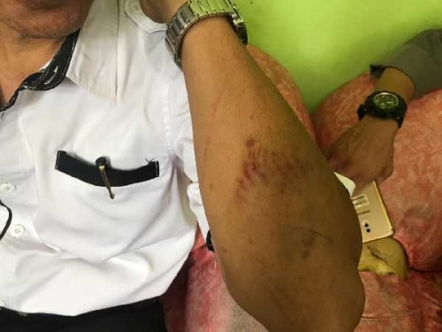 Aniaya Kepala Sekolah, Siswa SMA di Riau Jadi Tersangka