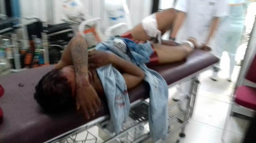 Tebas Kanit Provos dengan Parang, Bandit Nekat Ini Ditembak Dua Kali... Terkapar Tak Berkutik