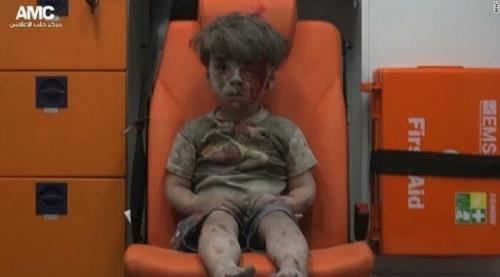 Foto Menggetarkan Jiwa, Balita Suriah Berlumuran Darah Menanti Pertolongan