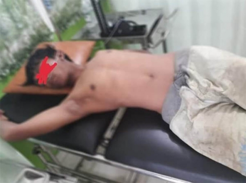 Pulang Kerja, Dokter Muda Ini Jadi Korban Begal di Rohil