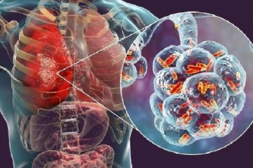 Jangan Panik, Kenali Tanda-tanda Virus Corona atau Pneumonia Wuhan