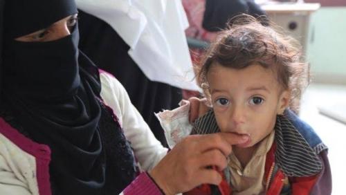 85.000 Balita Tewas di Yaman Akibat Kurang Gizi