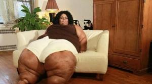 Idap Penyakit Langka, Kaki Wanita Ini Membesar Hingga Lingkarannya 1 Meter, Begini Penampakannya