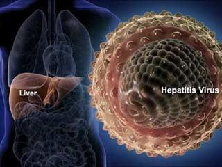 Wanita Muda Berusia 16 Tahun Ini Didiagnosa Menderita Hepatitis, Rupanya Ini Penyebabnya