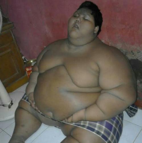 Kasihan, Bocah Cerdas Ini Terpaksa Berhenti Sekolah Gara-gara Obesitas, Bobotnya 140 Kilogram Sehingga Tak Bisa Berjalan
