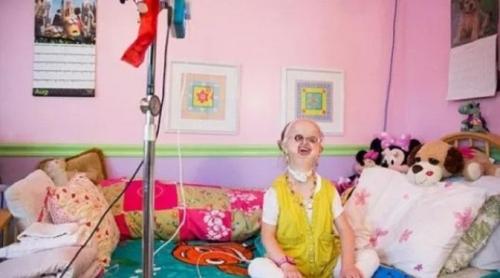 Alami Sindrom Langka, Gadis Berusia 20 Tahun Ini Masih Seperti Anak Kecil