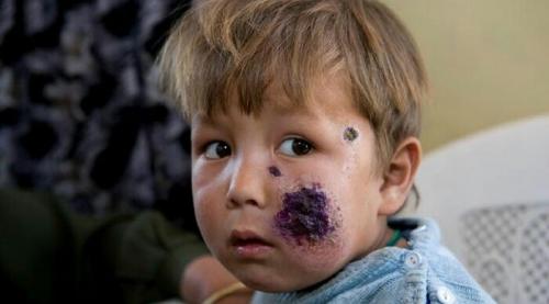 Para Pengungsi Suriah, Termasuk Anak-anak, Terjangkit Penyakit Mengerikan