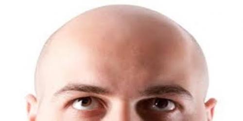 Hasil Penelitian, Pria Pendek Rentan Botak Lebih Cepat