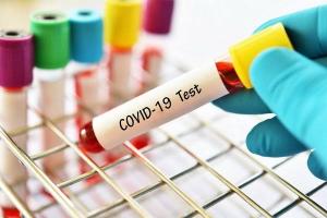10 Warga Tenayan Raya Didapati Reaktif Covid-19 Setelah Rapid Tes Massal Hari Ini