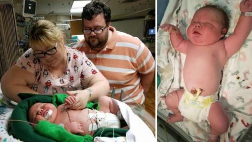 Jennifer Lahirkan Bayi Raksasa 6,7 Kilogram, Ini Penampakannya